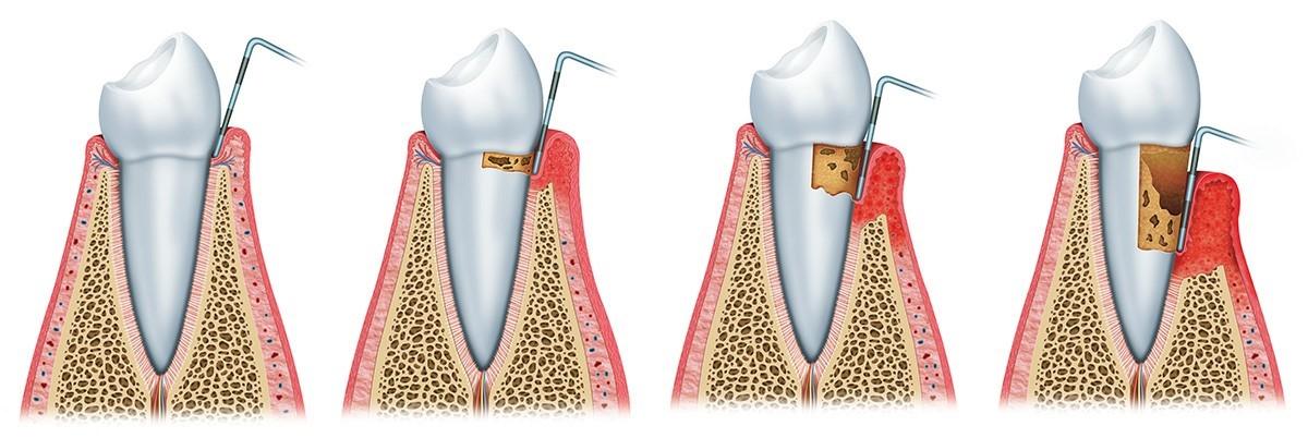 Darstellung des Verlaufs einer Parodontose