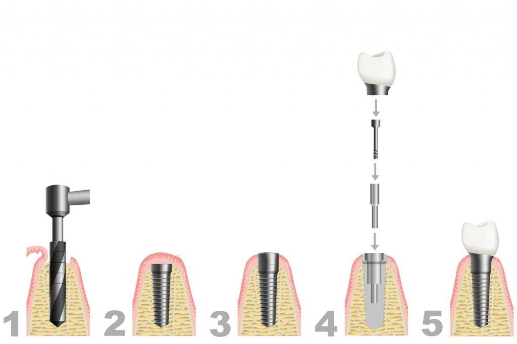 Vorgehen bei Zahnimplantate