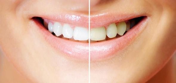Bleaching vom Zahnarzt in München für ein strahlendes Lächeln und helle Zähne