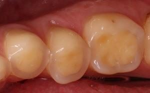 Zahn mit Säudeschäden