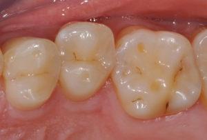 durch Säure beschädigter Zahn