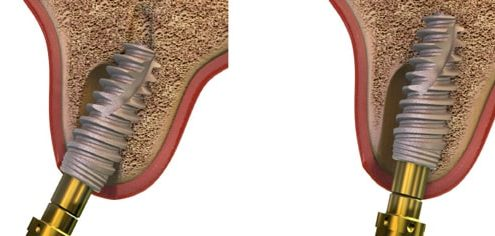 Sofortimplanat Zahnimplantat