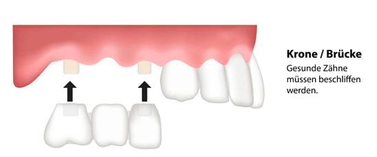Zahnbrücke Zahnersatz