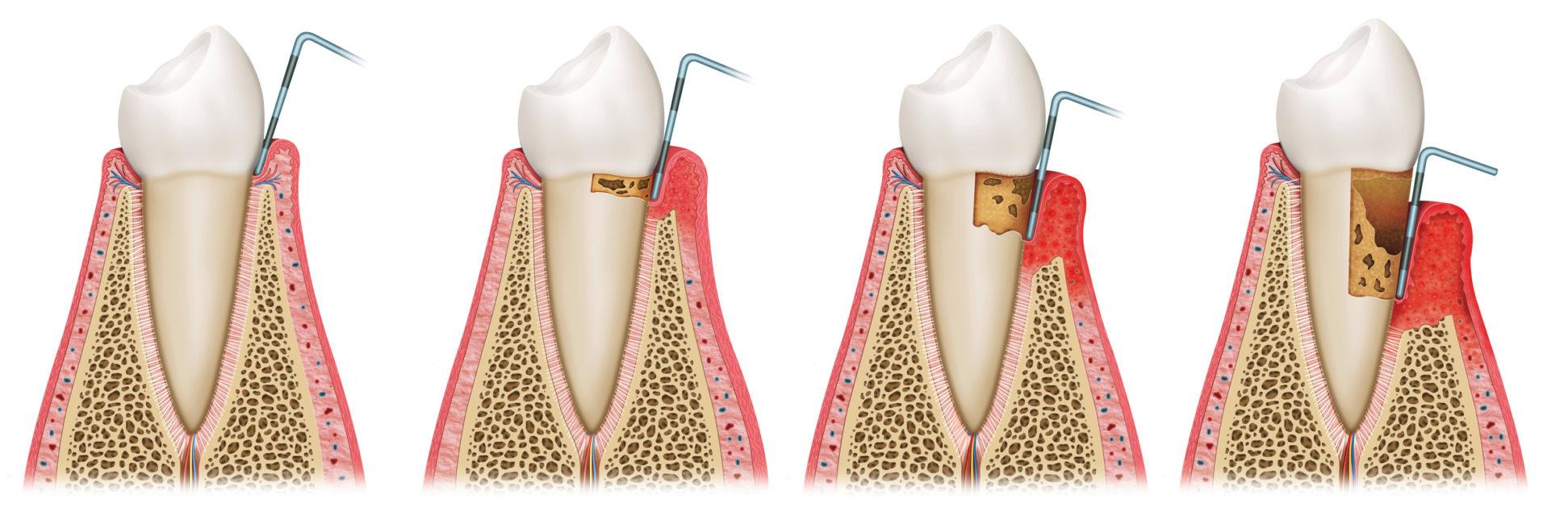 Schemazeichnung einer Parodontose Erkrankung