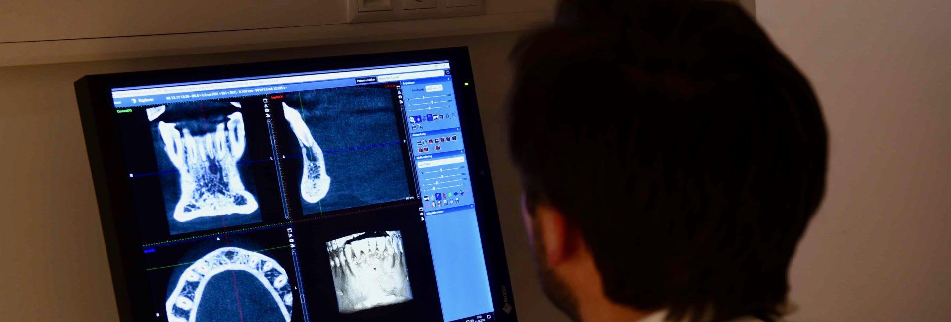 DVT Befundung vor Operation mit Zahnimplantat