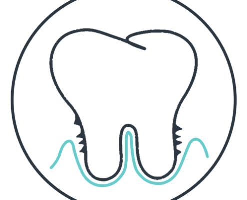 Zeichnung für Parodontologie Leistung der Zahnärzte am Marienplatz