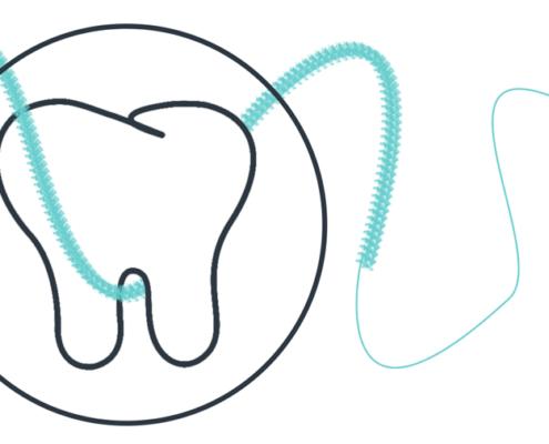 Illustration proffesionelle Zahnreinigung zur Prophylaxe