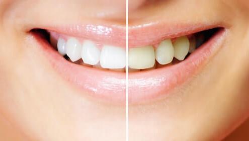 Weissheits Vergleich der Zähne vor und nach dem Bleaching bei den Zahnärzten am Marienplatz