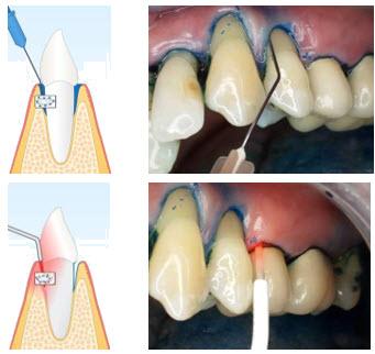 Ablauf einer Parodontosebehandlung mit Laser