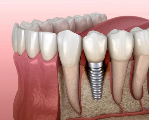 Entstehung von Eiter am Zahnimplantat - Periimplantits genannt - Zahnärzte Marienplatz