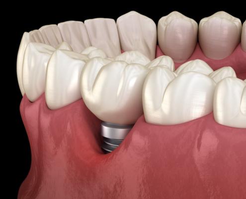 Schmerzbild Zahnimplantate München